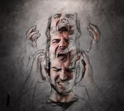Синдром Брике